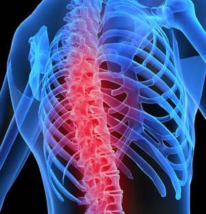 Остеохондроз позвоночника травматология