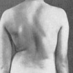 Photo of Сколиоз. Этиология. Патогенез. Клиническая картина.