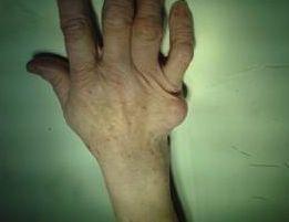 Photo of Опухоли кисти