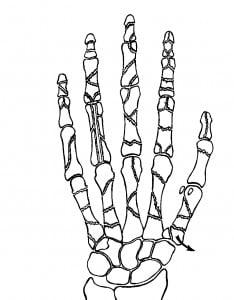 Photo of Переломы костей кисти