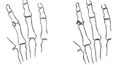 Внутрисуставные переломы пястно-фаланговых суставов лечение суставов на грязях