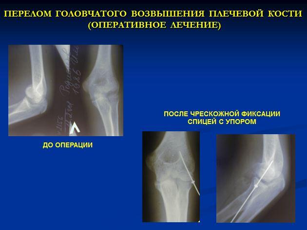 трещина сустава в колене