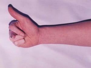 Photo of Ошибки и осложнения в лечении повреждений кисти