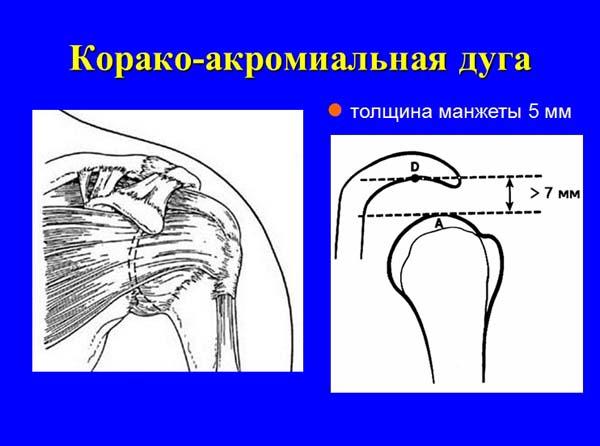 Изображение - Субакромиальный импиджмент плечевого сустава korako-akromialnaya-duga