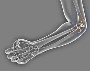 Photo of Травматические повреждения локтевого сустава. Переломы.