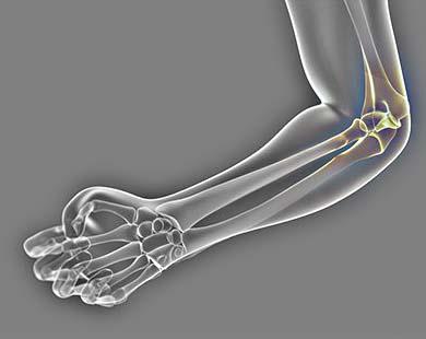Травматические повреждения локтевого сустава. Переломы ...