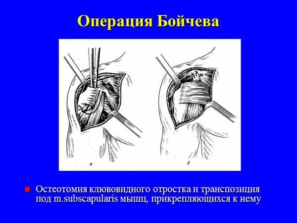виды операций на плечевой сустав