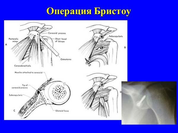 стастика операций на плечевом суставе