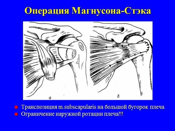 нестабильность сустав плеча