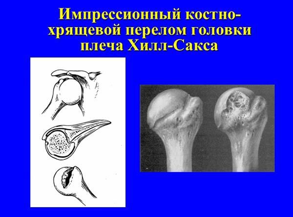 Photo of Привычный вывих плеча. ЧастьII.