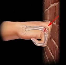 Перелом боксера (перелом V пястной кости) | Травматология для всех