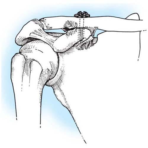 Как сделать ключицы упражнения 438