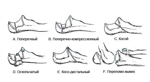 лфк для перелом локтевого сустава