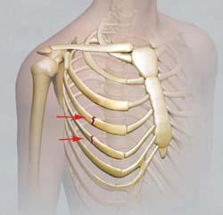 Photo of Изолированные переломы ребер