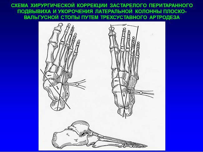 Артродез шопарова сустава прцовая настойка для суставов